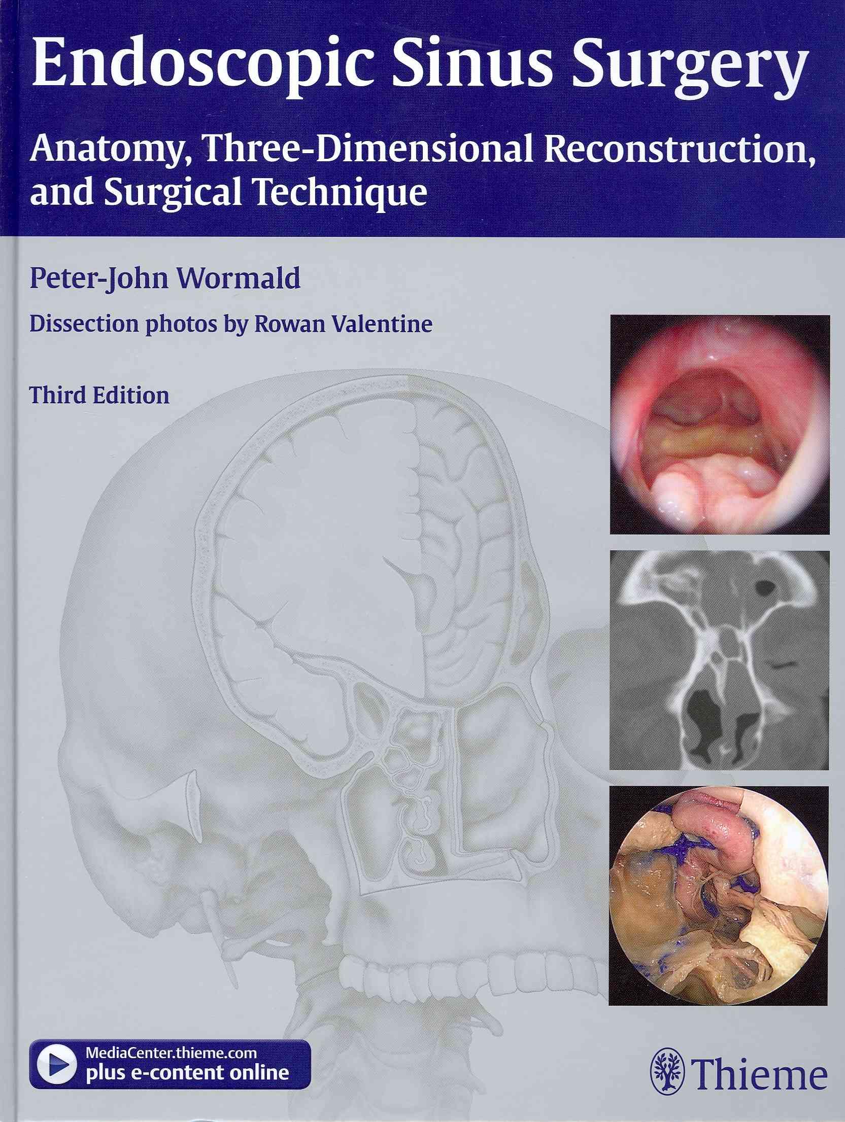 Endoscopic Sinus Surgery By Wormald, Peter-John